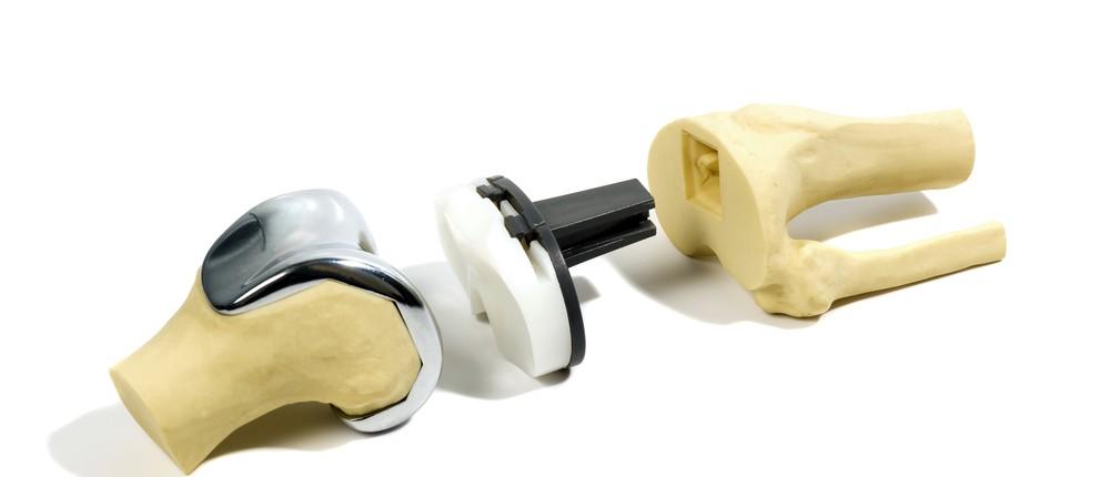 Proteza totala de genunchi