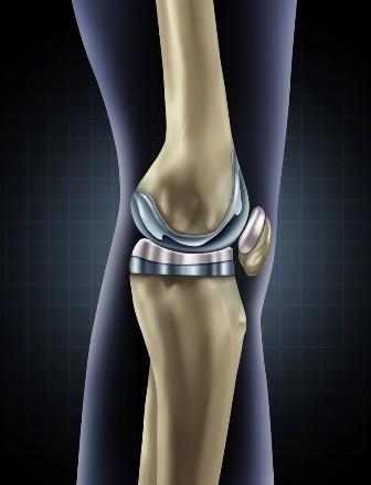 Tratament coxartroza cu proteza de genunchi