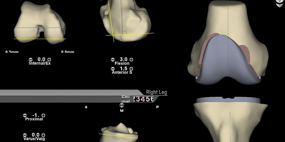 Imagine 3D proteza de genunchi