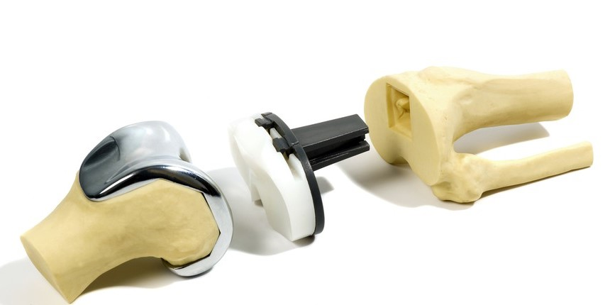 Cele 3 componente ale protezei de genunchi.