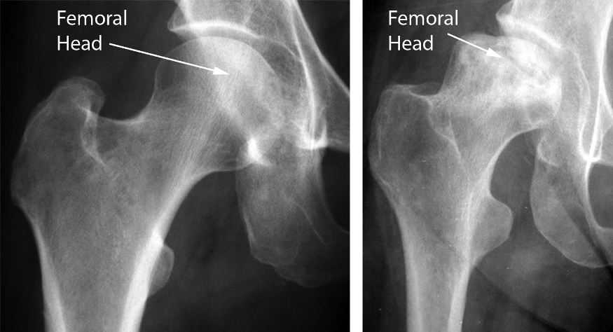 Colapsul capului femural prezent in stadiile avansate ale NACF